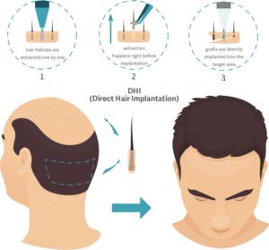 dhi-hair-transplant-procedure